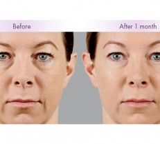 Voluma Allergan
