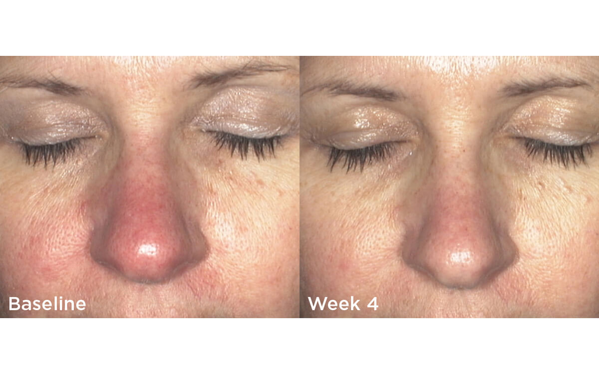 Redness Relief 4 Weeks