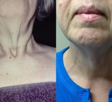 NIR Skin Tightening Neck Front