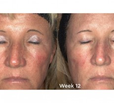 12 weeks of Redness Relief