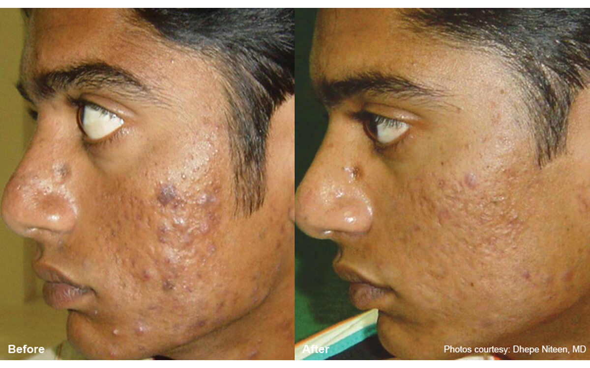 Laser 360 Acne Scarring